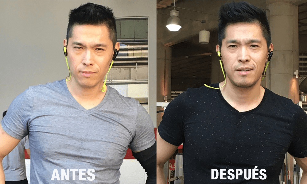 Antes y después aumento de mentón