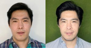 armonizacion facial y botox preventivo para hombres