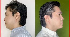 3 PASOS PARA REDUCIR LA PAPADA ¡de forma permanente!, reduccion de papada antes y despues, aumento de menton antes y despues